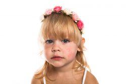 Диатез у детей: причины и лечение