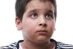 Сыпь на коже у ребенка: в чем причина, как лечить?