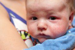 Почему появляются шершавые пятна на коже у ребенка