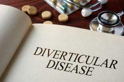 Дивертикулы кишечника у детей: почему возникают, как проявляются, принципы лечебного питания
