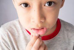 Как вылечить стоматит у ребенка, особенности питания
